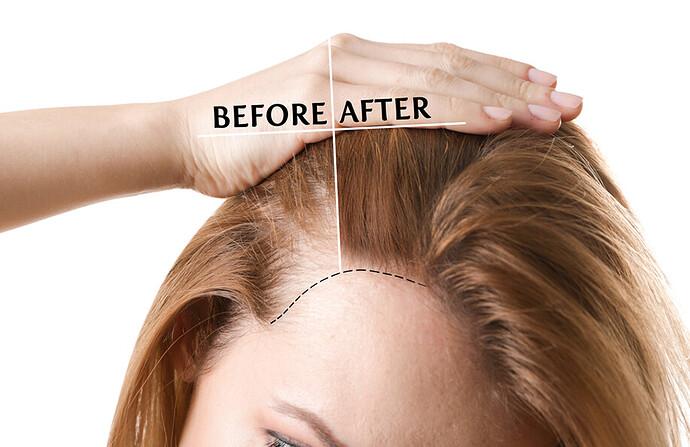 Women Hair Transplant in Turkey