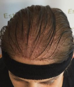 Unshaved-Hair-Transplantation-for-Women-with-DHI-Method-2-254x300