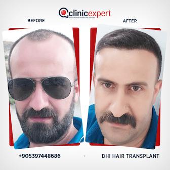 en-hair-transplant-ba3