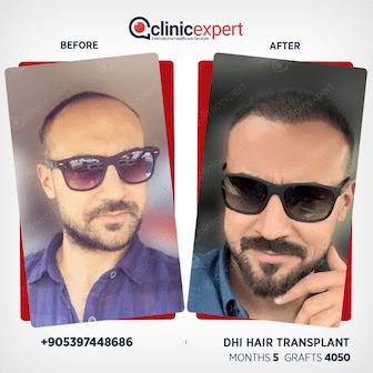 en-hair-transplant-ba2