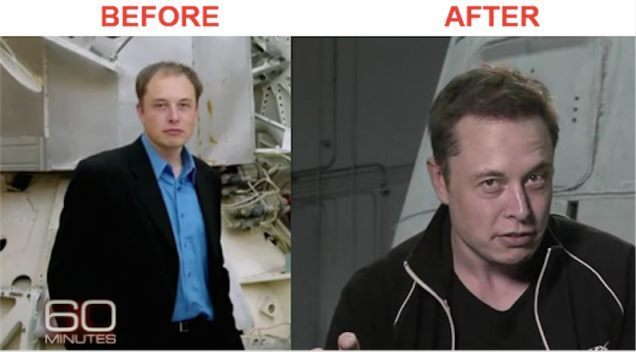 elon-musk-hair-transplant-before-after-1