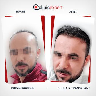 en-hair-transplant-ba1