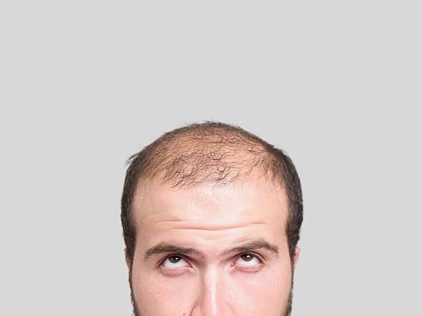 hair-loss-in-men